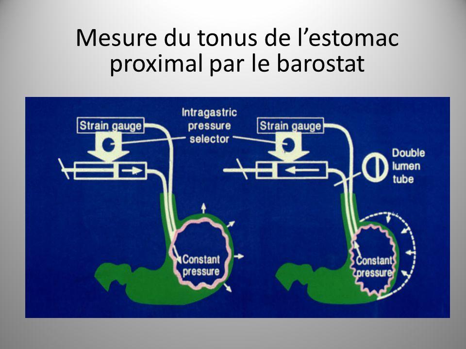 Mesure du tonus de l'estomac proximal par le barostat