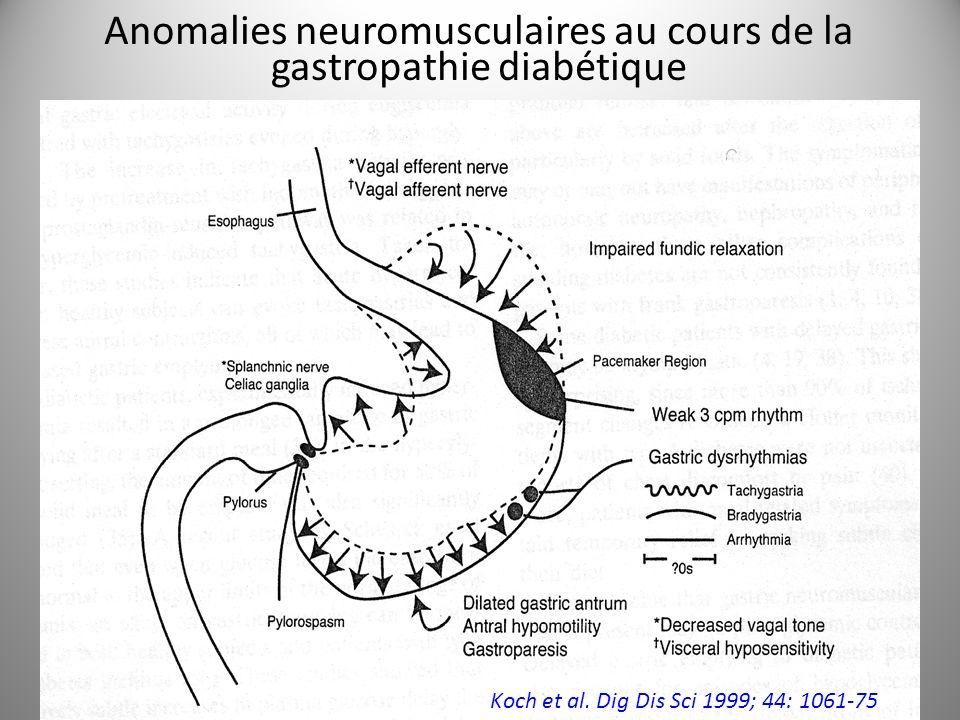 Anomalies neuromusculaires au cours de la gastropathie diabétique