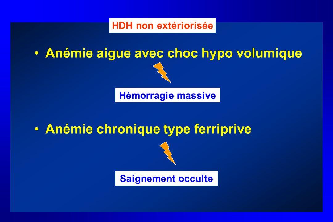 Anémie aigue avec choc hypo volumique