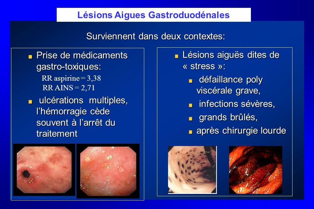 Lésions Aigues Gastroduodénales