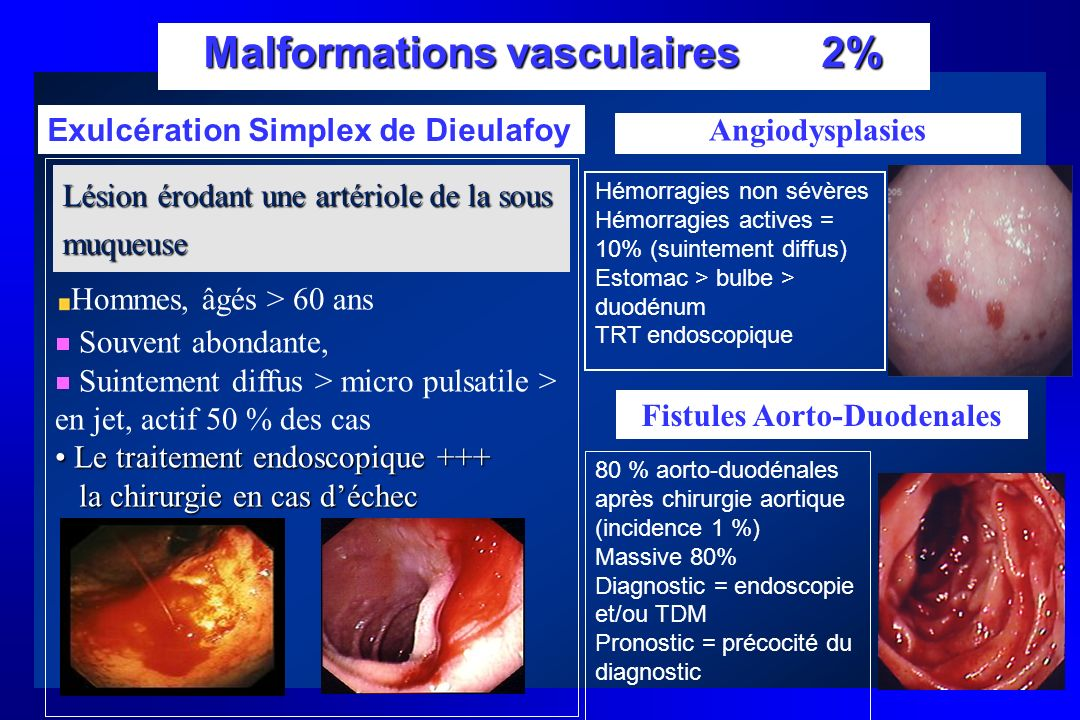 Malformations vasculaires 2%
