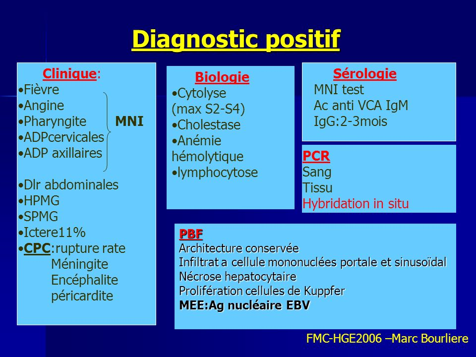 Diagnostic positif Clinique: Fièvre Angine Pharyngite MNI