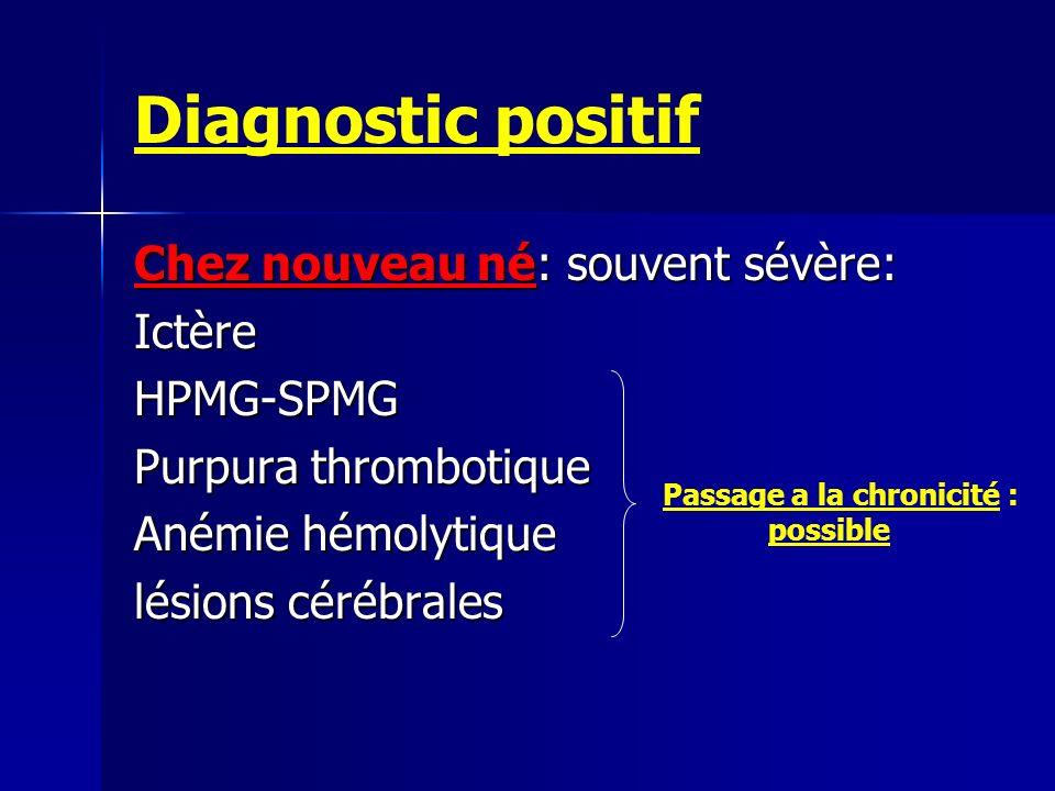 Diagnostic positif Chez nouveau né: souvent sévère: Ictère HPMG-SPMG