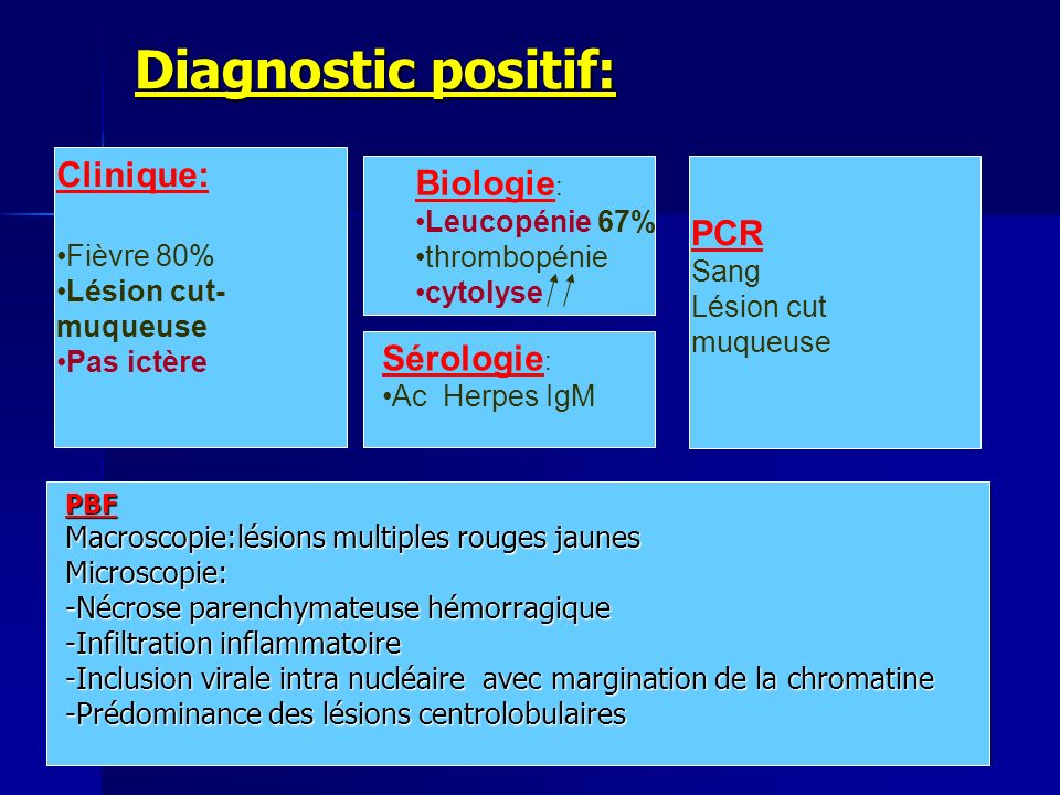 Diagnostic positif: Clinique: Biologie: PCR Sérologie: Leucopénie 67%
