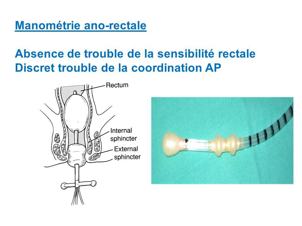 Manométrie ano-rectale