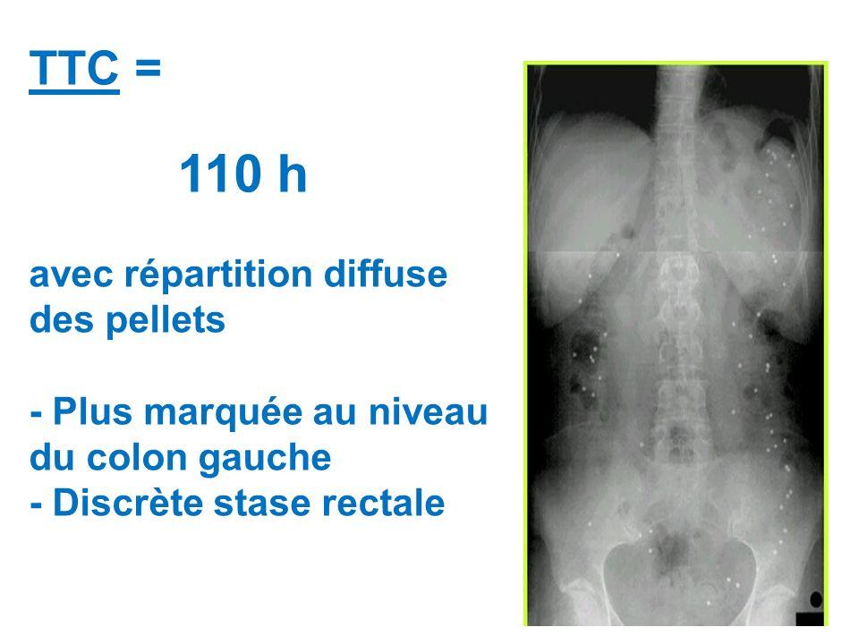 TTC = 110 h avec répartition diffuse des pellets