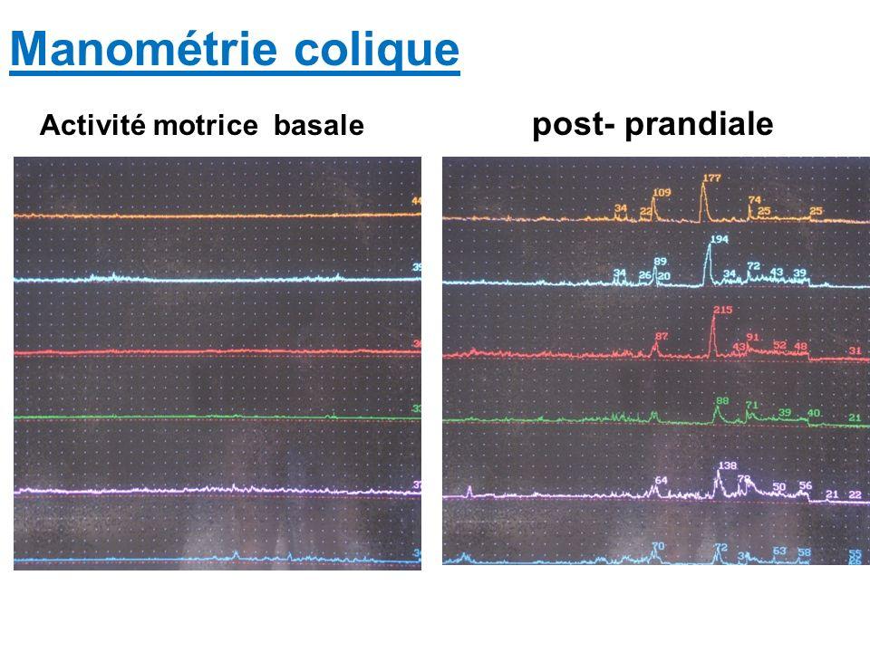 Manométrie colique Activité motrice basale post- prandiale