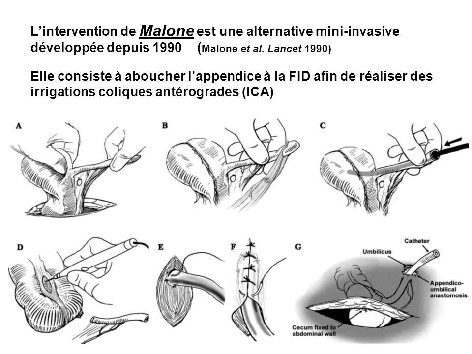 L'intervention de Malone est une alternative mini-invasive développée depuis 1990 (Malone et al. Lancet 1990)