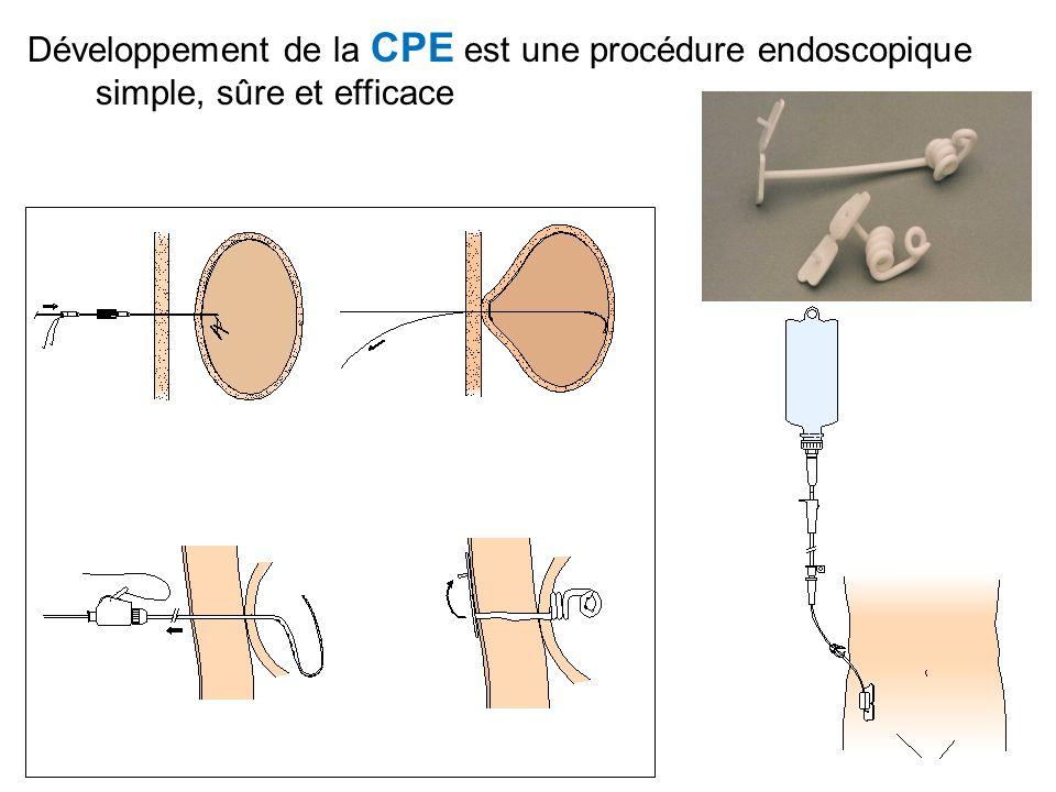 Développement de la CPE est une procédure endoscopique