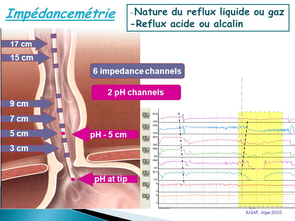 Impédancemétrie -Reflux acide ou alcalin 15 cm 6 impedance channels