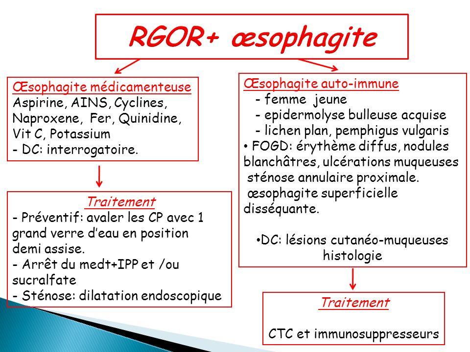 RGOR+ œsophagite Œsophagite auto-immune Œsophagite médicamenteuse