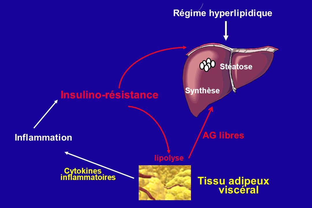 Régime hyperlipidique Cytokines inflammatoires Tissu adipeux viscéral