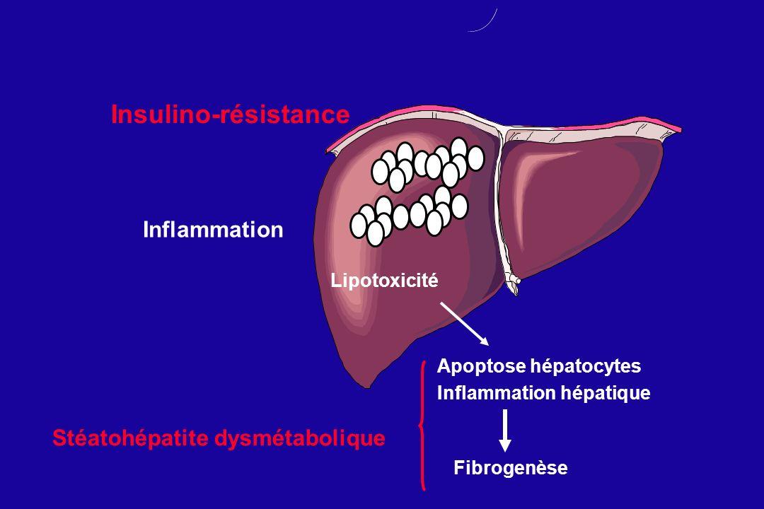 Insulino-résistance Inflammation Stéatohépatite dysmétabolique