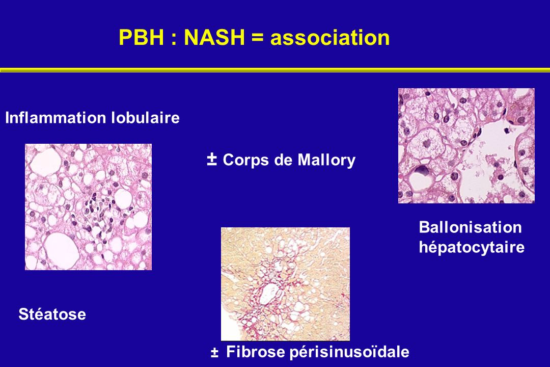 PBH : NASH = association