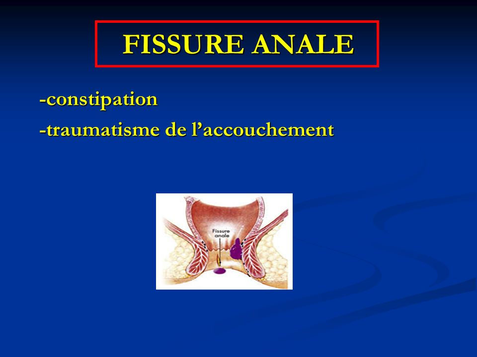 FISSURE ANALE -constipation -traumatisme de l'accouchement