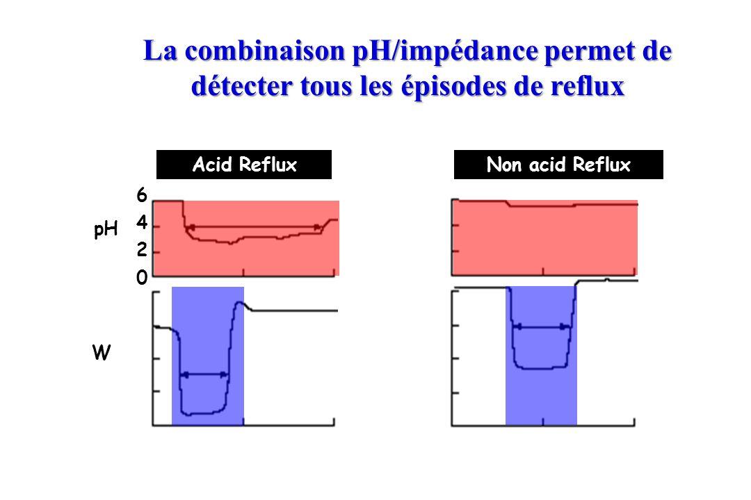 La combinaison pH/impédance permet de détecter tous les épisodes de reflux