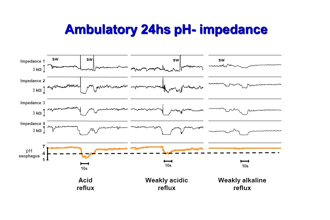 Ambulatory 24hs pH- impedance