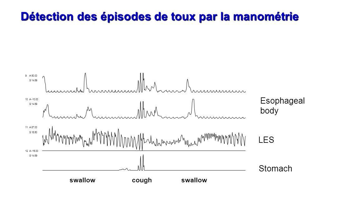 Détection des épisodes de toux par la manométrie