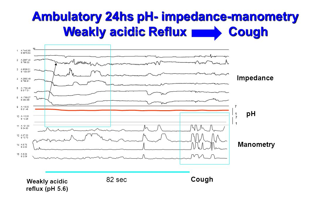 Ambulatory 24hs pH- impedance-manometry Weakly acidic Reflux Cough