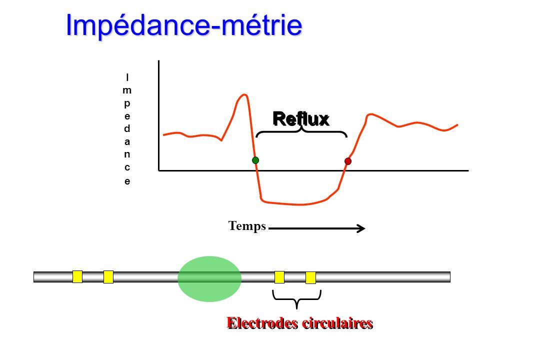 Electrodes circulaires