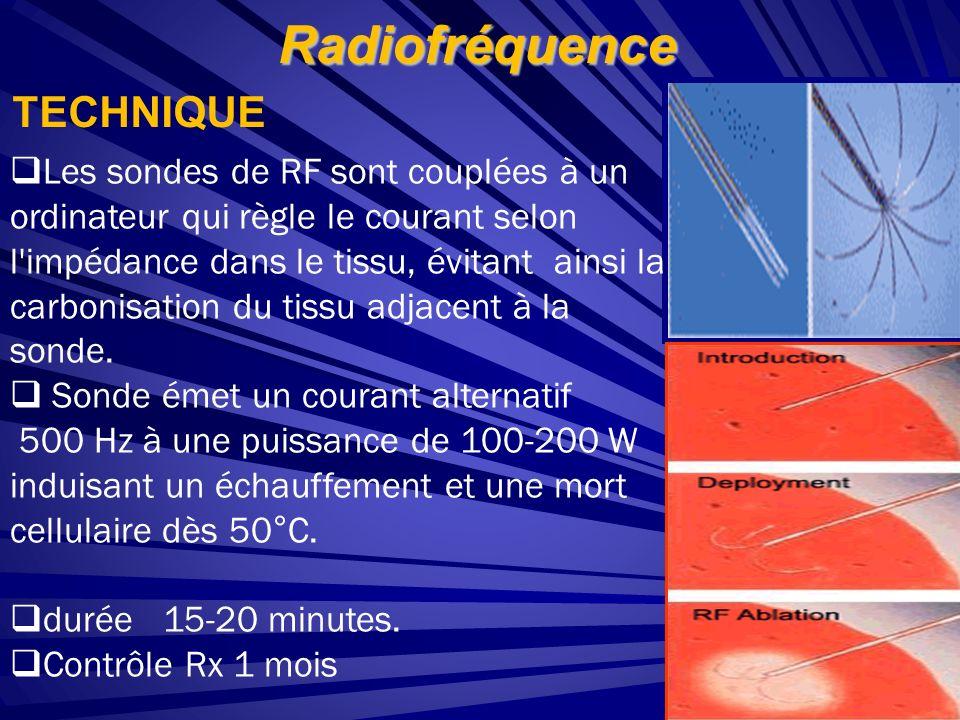 Radiofréquence TECHNIQUE