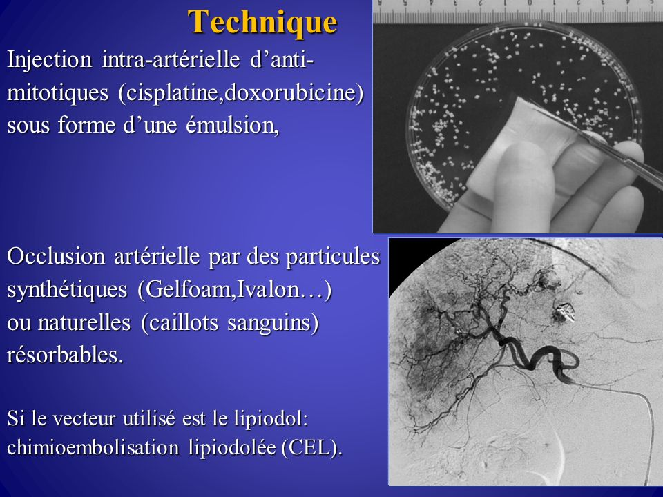 Injection intra-artérielle d'anti-