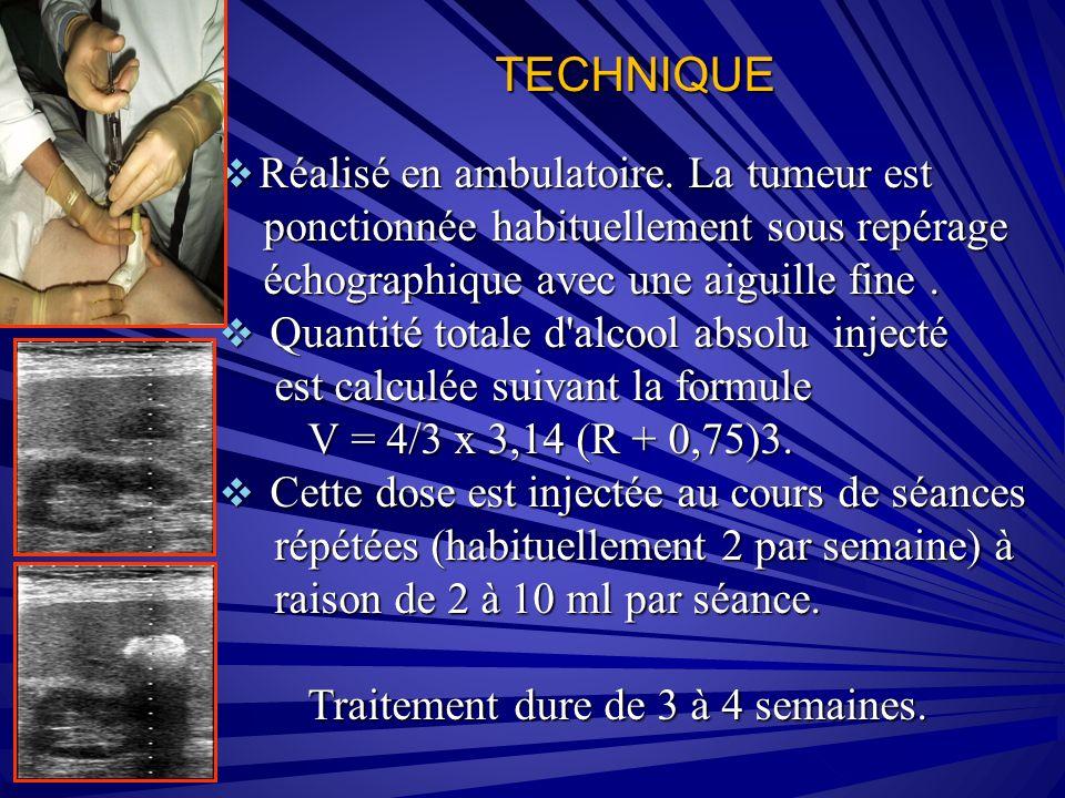 TECHNIQUE Réalisé en ambulatoire. La tumeur est