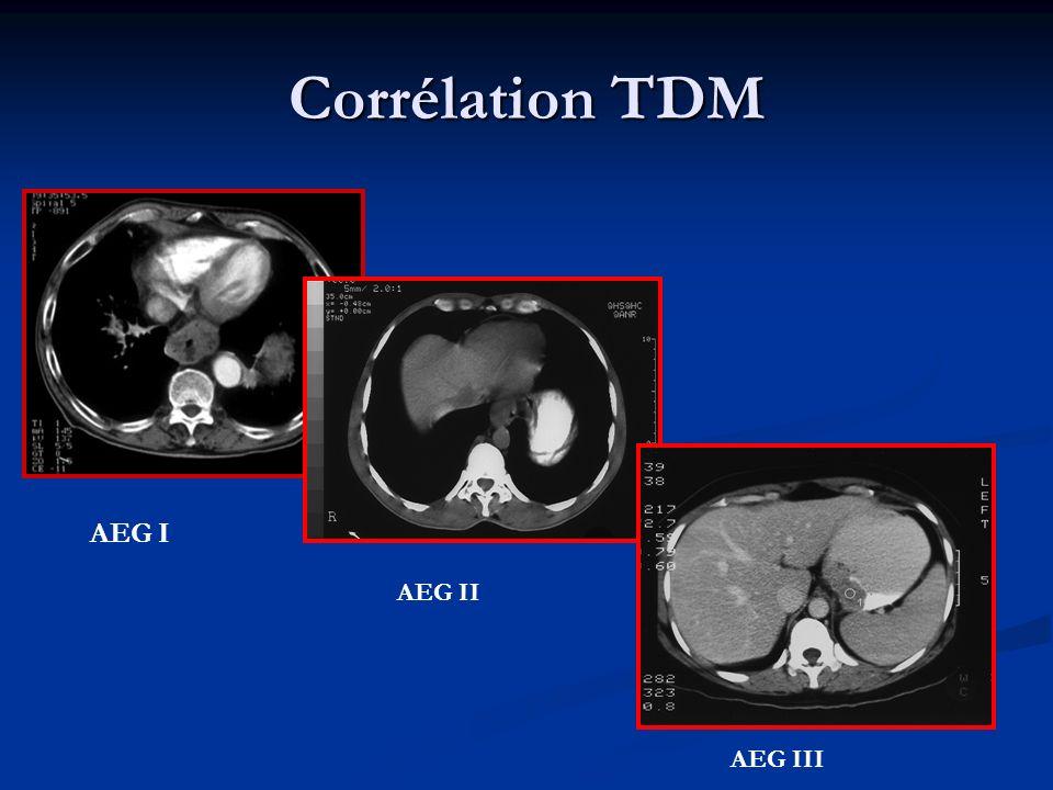 Corrélation TDM AEG I AEG II AEG III