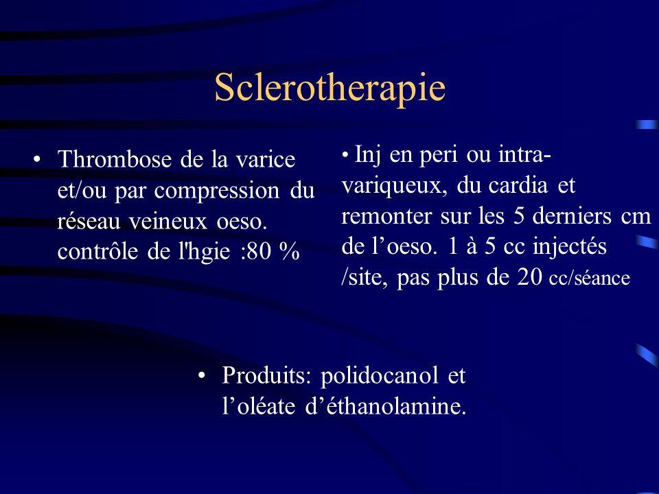 Sclerotherapie