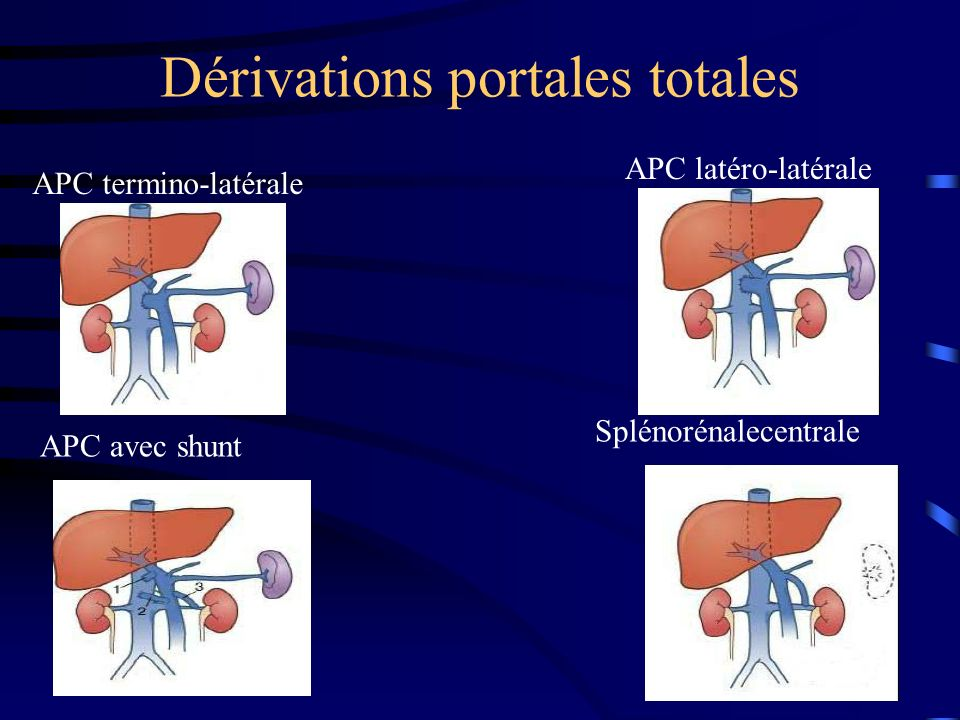 Dérivations portales totales