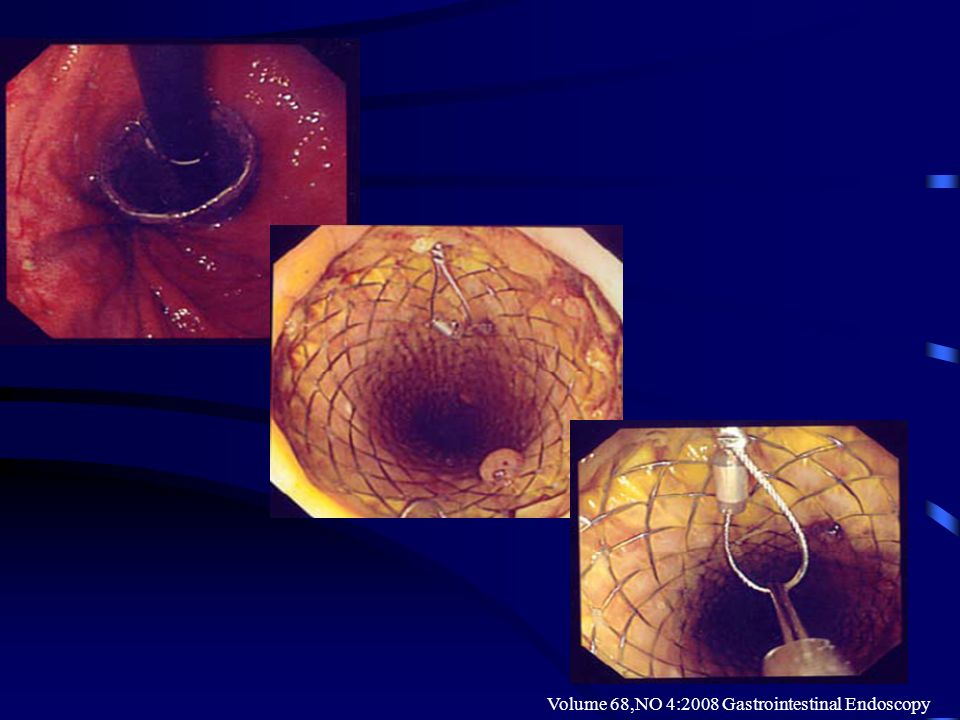 Volume 68,NO 4:2008 Gastrointestinal Endoscopy