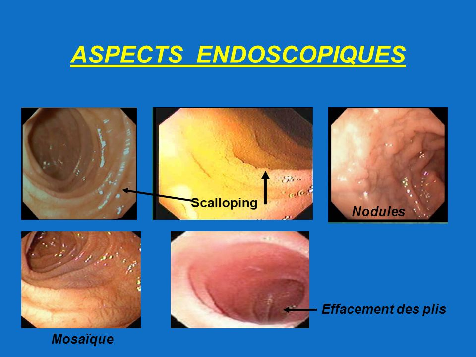 ASPECTS ENDOSCOPIQUES