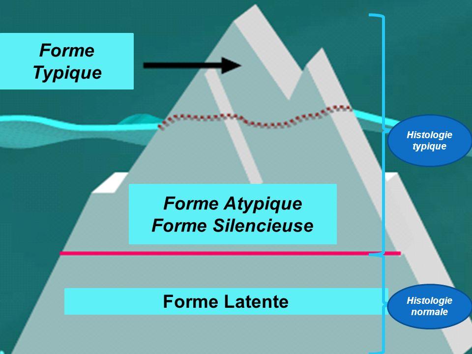 Forme Typique Forme Atypique Forme Silencieuse Forme Latente