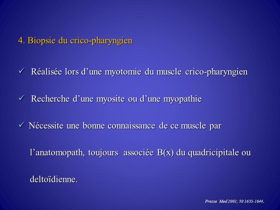 4. Biopsie du crico-pharyngien