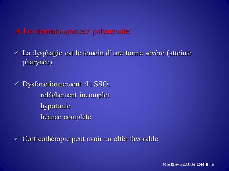 .4. Les dermatomyosites/ polymyosite: