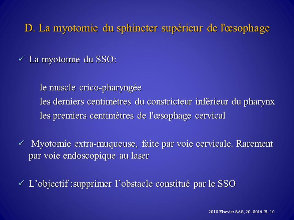 D. La myotomie du sphincter supérieur de l œsophage