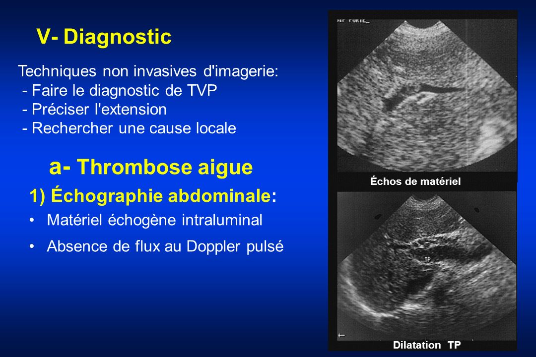 a- Thrombose aigue V- Diagnostic 1) Échographie abdominale: