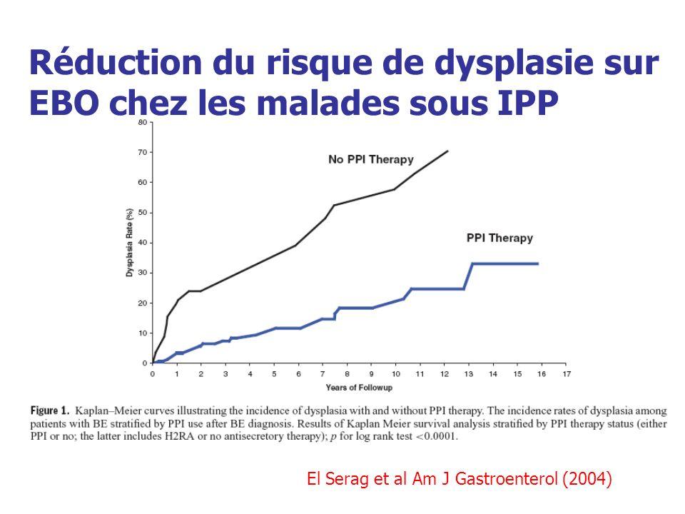 Réduction du risque de dysplasie sur EBO chez les malades sous IPP
