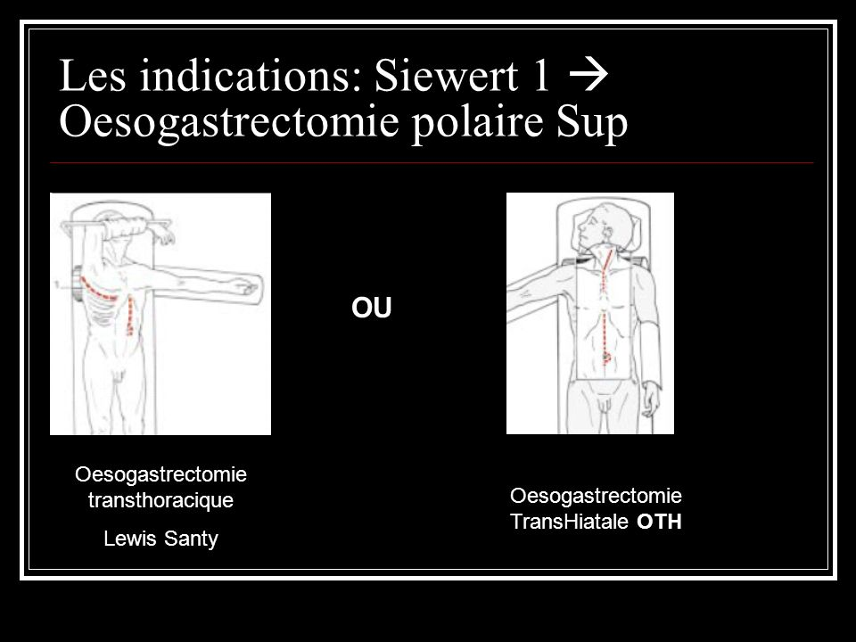Les indications: Siewert 1  Oesogastrectomie polaire Sup