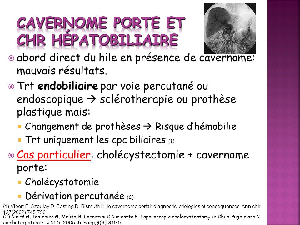 Cavernome porte et CHR hépatobiliaire