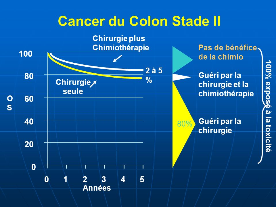 Cancer du Colon Stade II