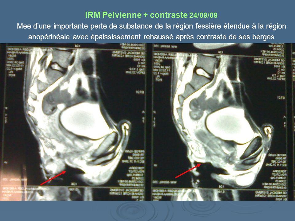 IRM Pelvienne + contraste 24/09/08