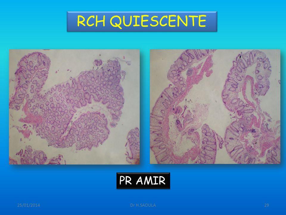 RCH QUIESCENTE PR AMIR 26/03/2017 Dr H.SAOULA