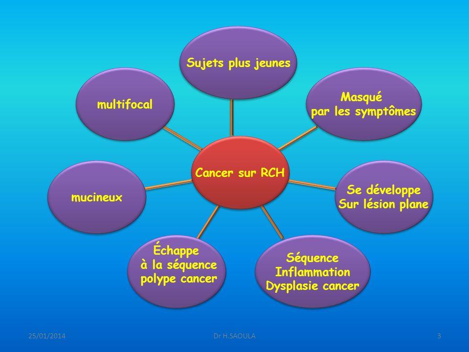 Sujets plus jeunes Masqué multifocal par les symptômes Cancer sur RCH