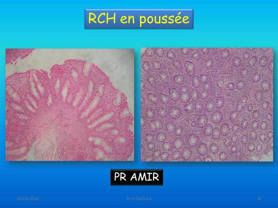RCH en poussée PR AMIR 26/03/2017 Dr H.SAOULA
