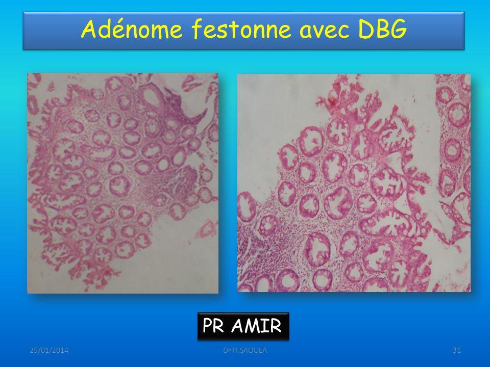 Adénome festonne avec DBG
