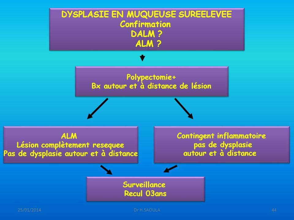 DYSPLASIE EN MUQUEUSE SUREELEVEE Confirmation DALM ALM