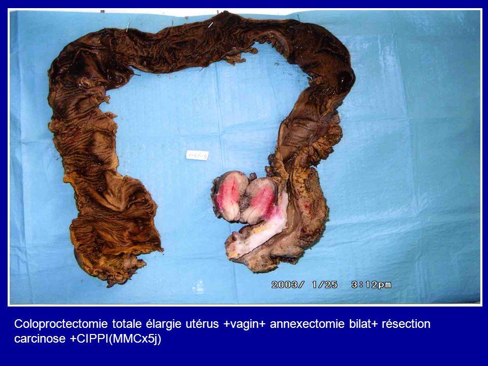Coloproctectomie totale élargie utérus +vagin+ annexectomie bilat+ résection carcinose +CIPPI(MMCx5j)