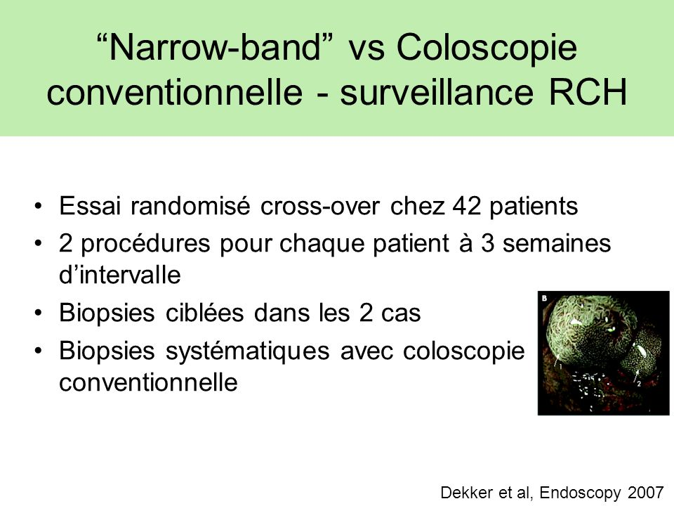 Narrow-band vs Coloscopie conventionnelle - surveillance RCH