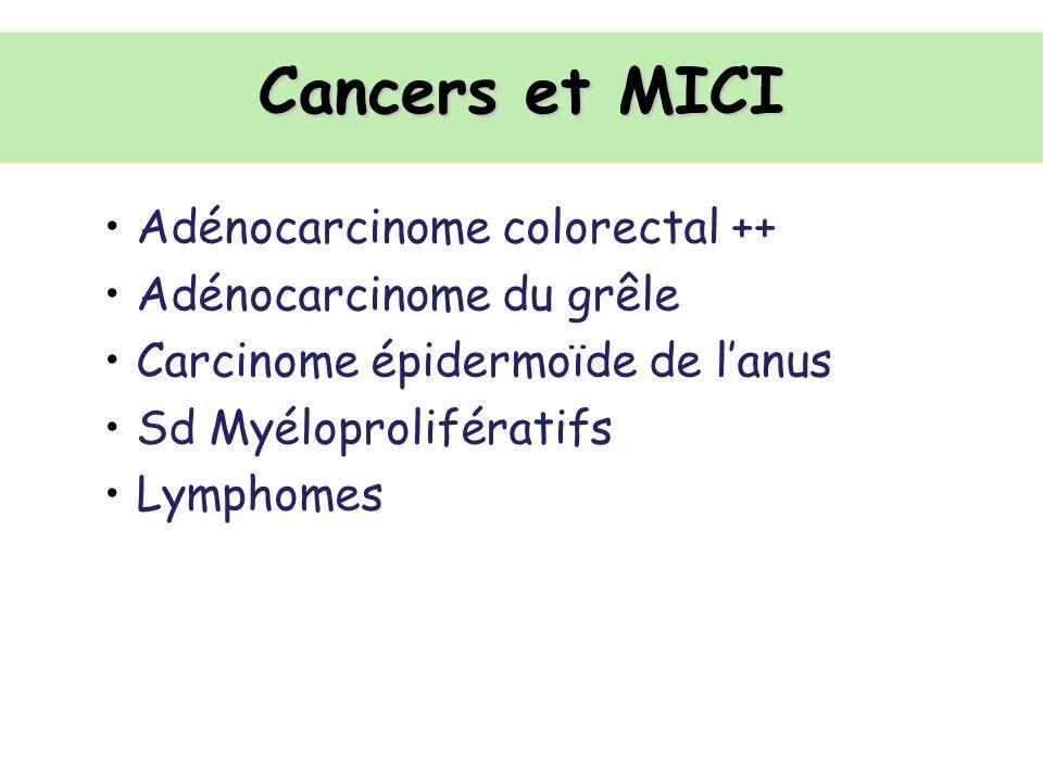 Cancers et MICI Adénocarcinome colorectal ++ Adénocarcinome du grêle